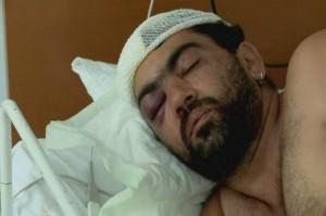Ilustračné foto: Jeden z vážne zranených aktérov hromadnej bitky leží v nemocnici. (Foto: TVNOVINY.sk)